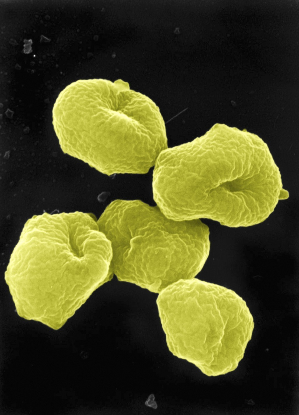 About Microbiology – Archaea